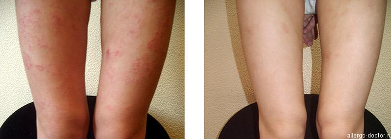 Аллергия на ногах ребенка